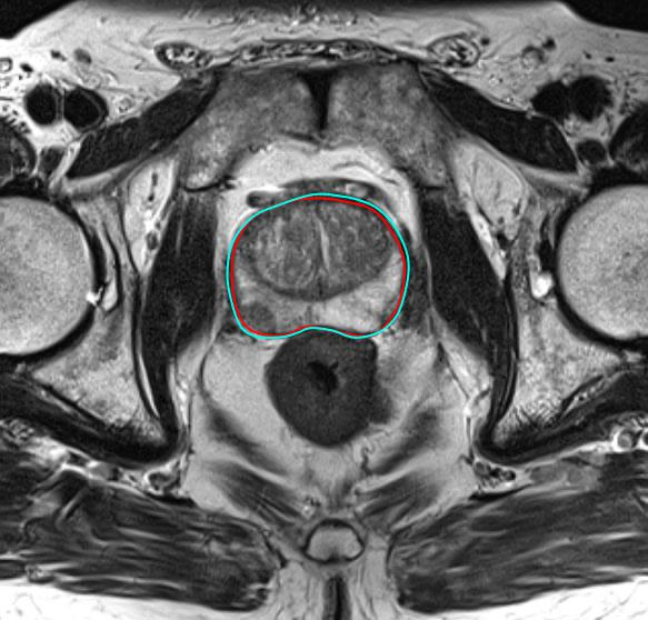 Our initial experiences with mpMRI-ultrasound fusion-guided prostate biopsy