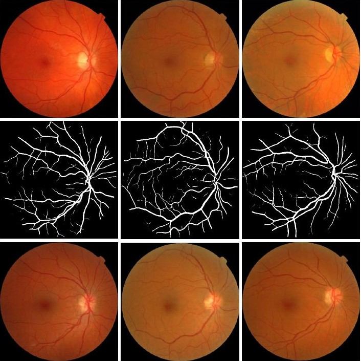 Papers With Code : Medical Image Generation