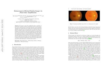 Enhancement of Retinal Fundus Images via Pixel Color Amplification