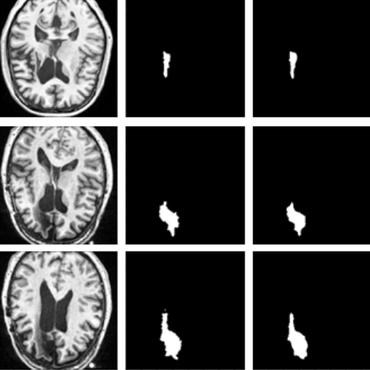 Papers With Code : Lesion Segmentation